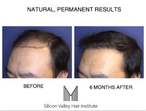 Silicon Valley Hair Institute, Listed as One of the Best