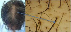 Hair Transplant for Women San Francisco Bay Area