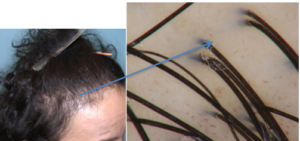 hair transplant reviews San Francisco