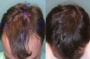 What S The Cost Of A Hair Transplant Is The Bay Area Really Expensive