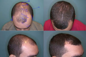 What S The Cost Of A Hair Transplant In San Jose Or San Francisco It Depends