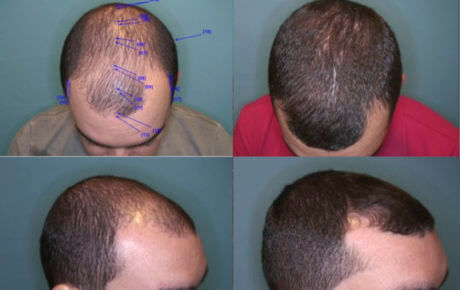 Cost of a hair transplant in the Bay Area