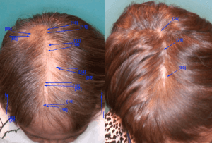 Why The Best Hair Transplant In San Francisco May Be In Foster City Press Release
