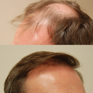 Foster City is the best place for a Palo Alto hair transplant.