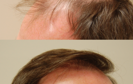 ARTAS robotic hair transplant San Francisco Bay Area