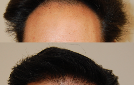 Hair Transplant Bay Area