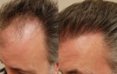 San Francisco Bay Area Hair Restoration