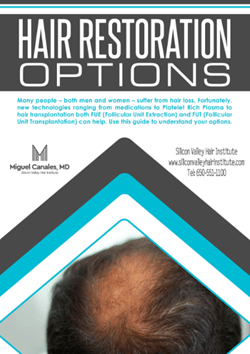 Hair Restoration Options