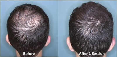 Scalp Micropigmentation San Francisco Bay Area