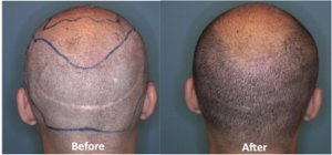 If You Want A San Francisco Hair Transplant You Need To Go To Foster City