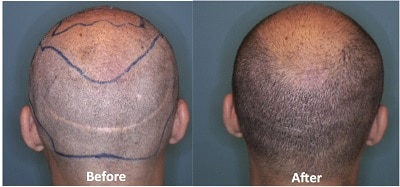 Scalp Micropigmentation Palo Alto / San Francisco